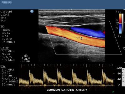 Farbdublexsonographie: Ultraschalluntersuchung der Halsgefäße